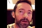 Hugh Jackman vuelve a ser intervenido por cáncer de piel