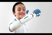 Prótesis infantil compatible con piezas de Lego gana premio