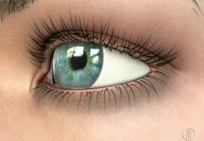 Especial: Día Mundial contra el Glaucoma