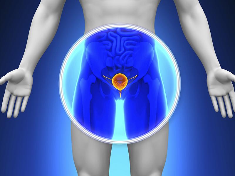 Chequeo temprano previene el cáncer de próstata