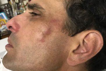 Gobernador Capriles y diputado Paparoni heridos durante protesta del lunes