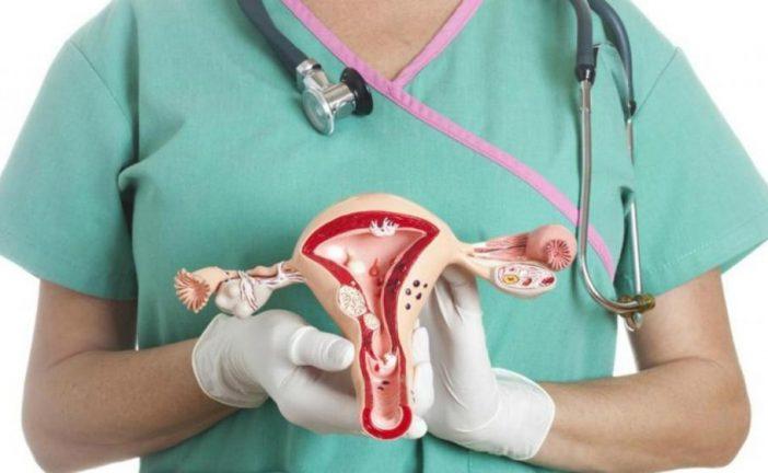 Cáncer de ovario mata al 70%  de las afectadas