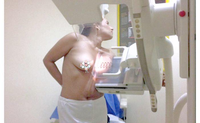 Mamografía, estudio perfecto para  determinar afecciones del seno